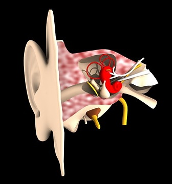 objective tinnitus